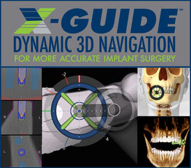 x-guide at Premier Periodontics and Implant Dentistry
