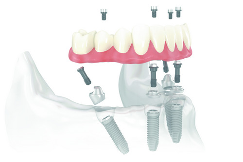 all on 4 treatment concept at Premier Periodontics and Implant Dentistry, Tinton Falls, NJ
